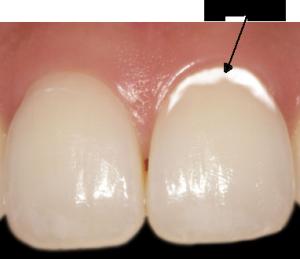 初期虫歯3